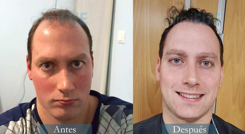 Injerto capilar de Iván 34 Años de Valencia con cliniFUE