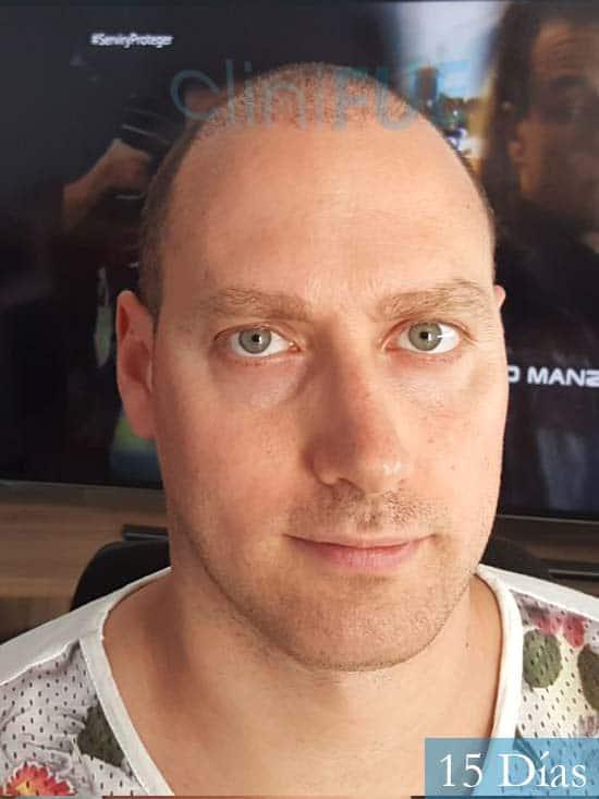Ivan trasplante de pelo turquia 15 dias