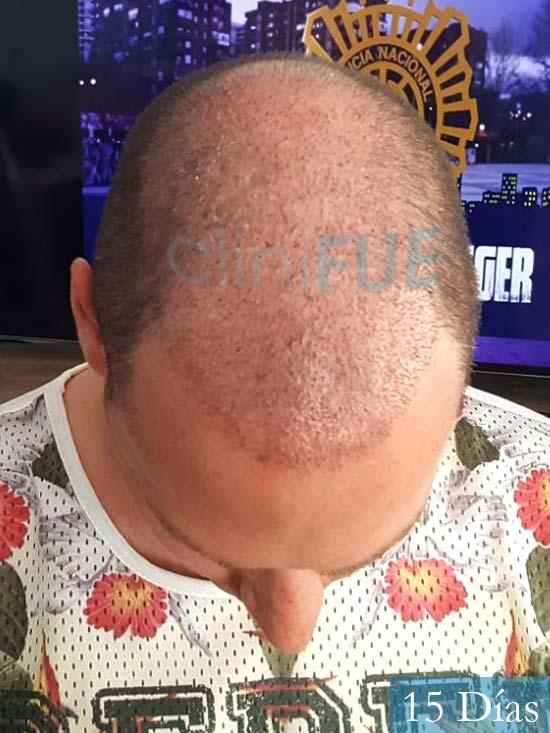 Ivan trasplante de pelo turquia 15 dias 2