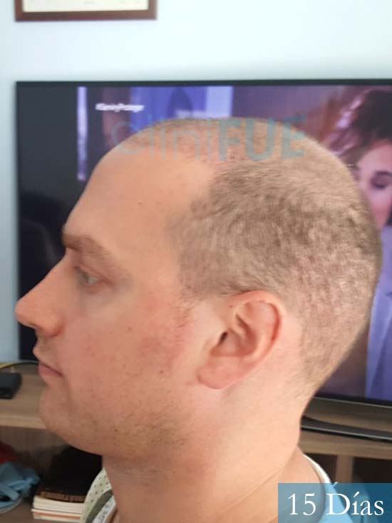 Ivan trasplante de pelo turquia 15 dias 5