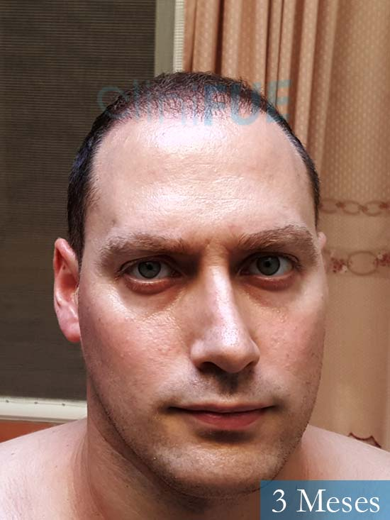 Ivan trasplante de pelo turquia 3 meses