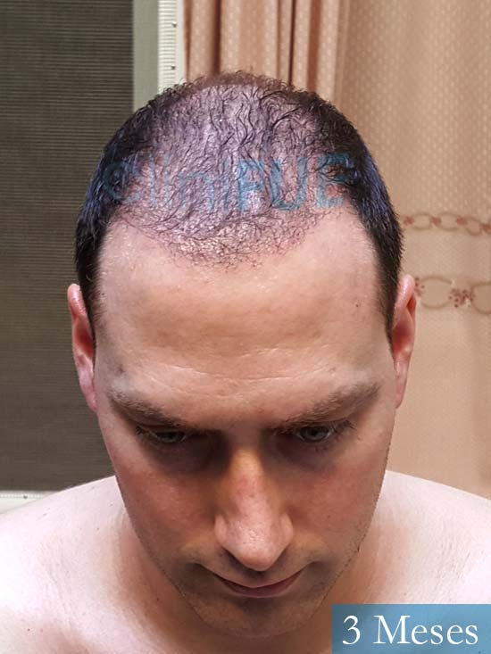 Ivan trasplante de pelo turquia 3 meses 2