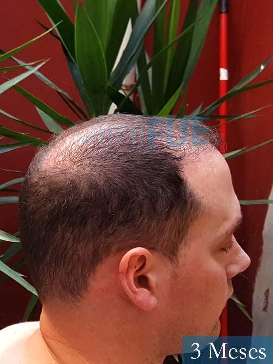 Ivan trasplante de pelo turquia 3 meses 3