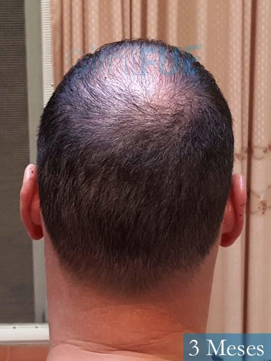 Ivan trasplante de pelo turquia 3 meses 5