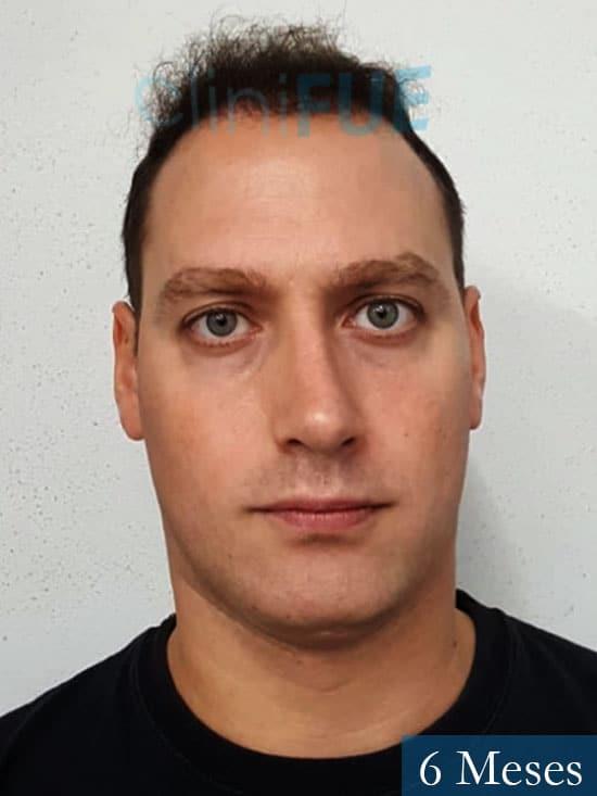 Ivan trasplante de pelo turquia 6 meses