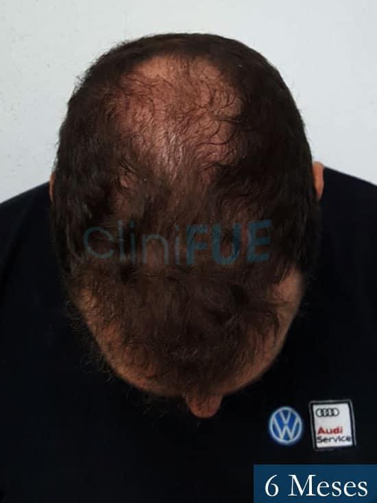 Ivan trasplante de pelo turquia 6 meses 2