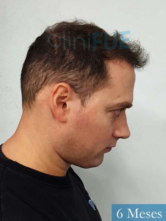 Ivan trasplante de pelo turquia 6 meses 3