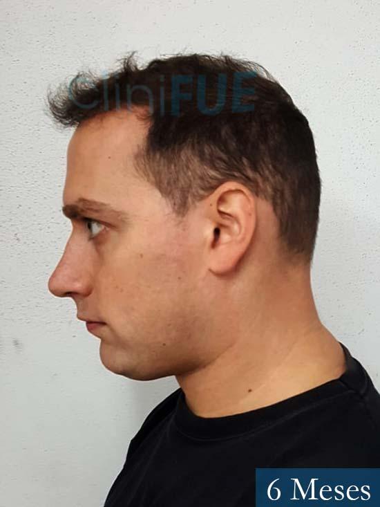Ivan trasplante de pelo turquia 6 meses 4