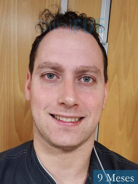 Ivan trasplante de pelo turquia 9 meses