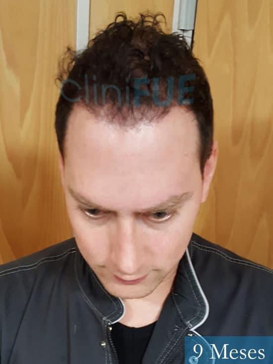 Ivan trasplante de pelo turquia 9 meses 2
