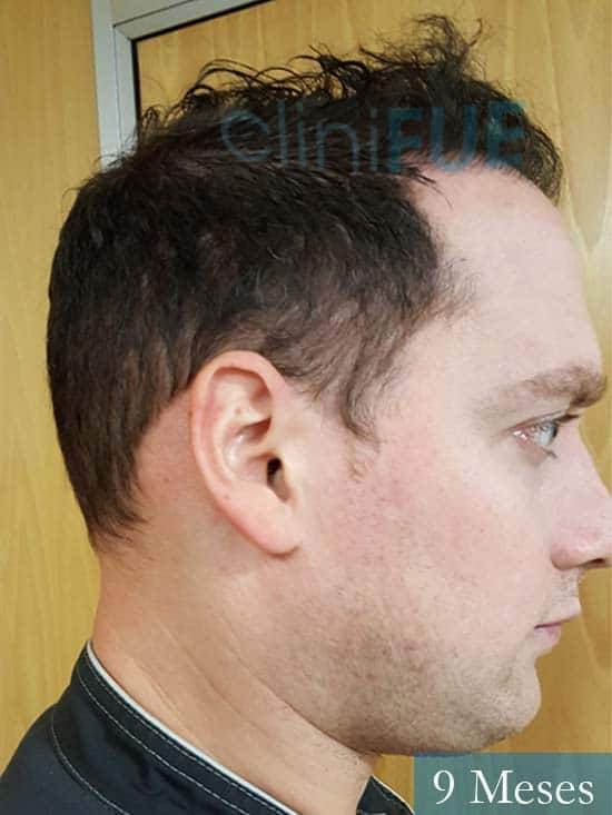 Ivan trasplante de pelo turquia 9 meses 3