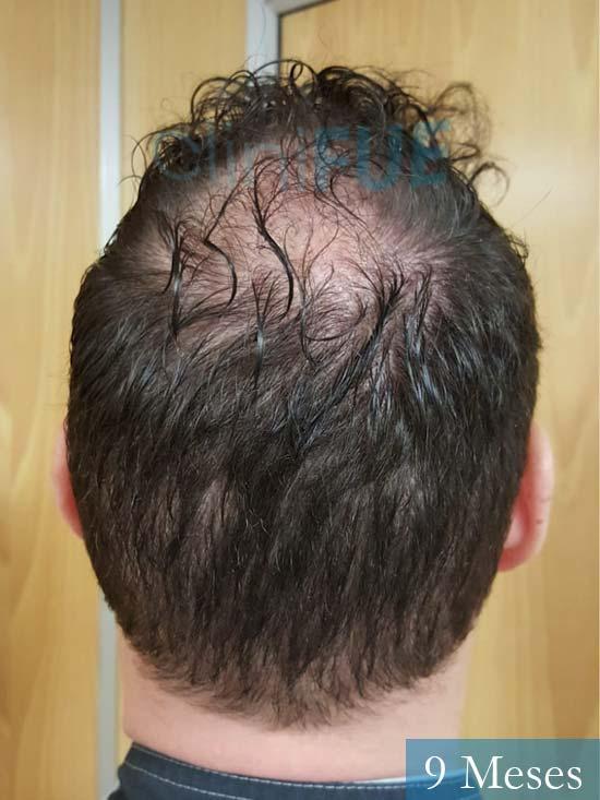 Ivan trasplante de pelo turquia 9 meses 5