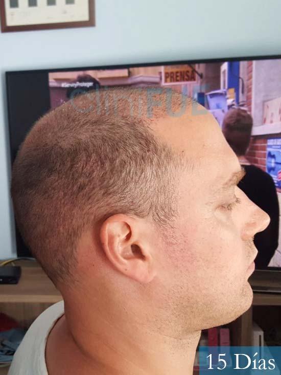 Ivan trasplante de pelo turquia 15 dias 4