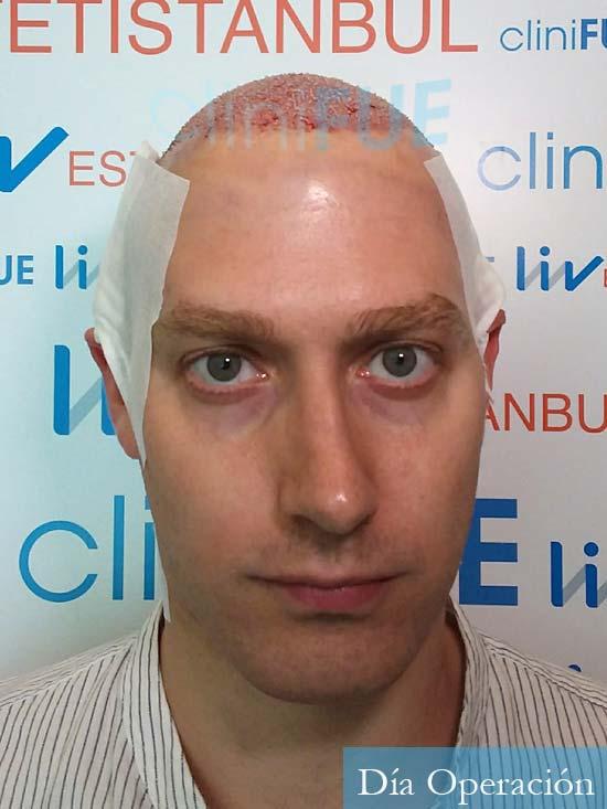 Ivan trasplante de pelo turquia dia operacion diseno 1