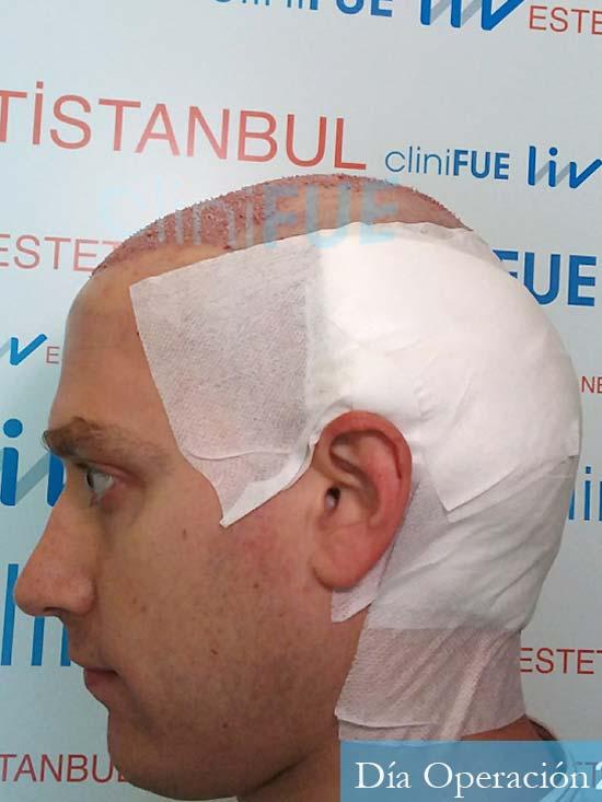 Ivan trasplante de pelo turquia dia operacion diseno 4