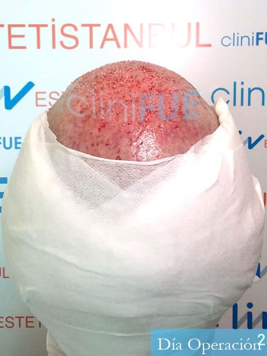 Ivan trasplante de pelo turquia dia operacion 6