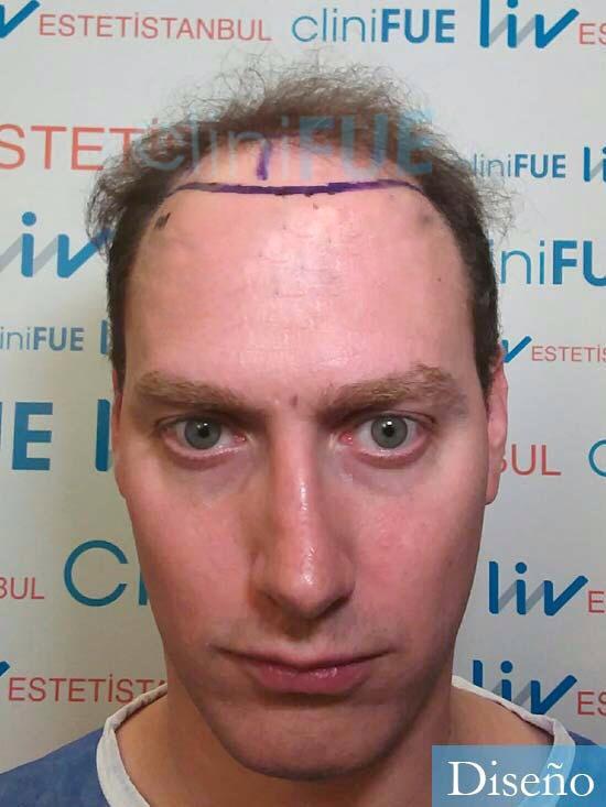 Ivan trasplante de pelo turquia dia operacion diseno
