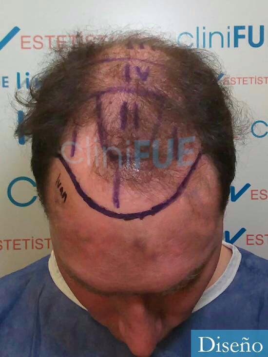 Ivan trasplante de pelo turquia dia operacion diseno 2