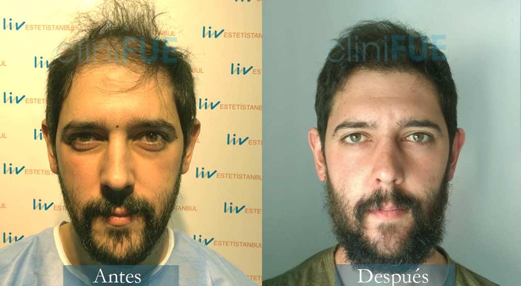 Injerto capilar de José Luis 32 Años de Cantabria con cliniFUE