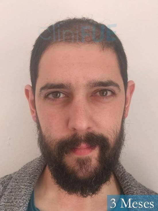 Jose Luis 32 cantabria injerto de pelo 3 meses