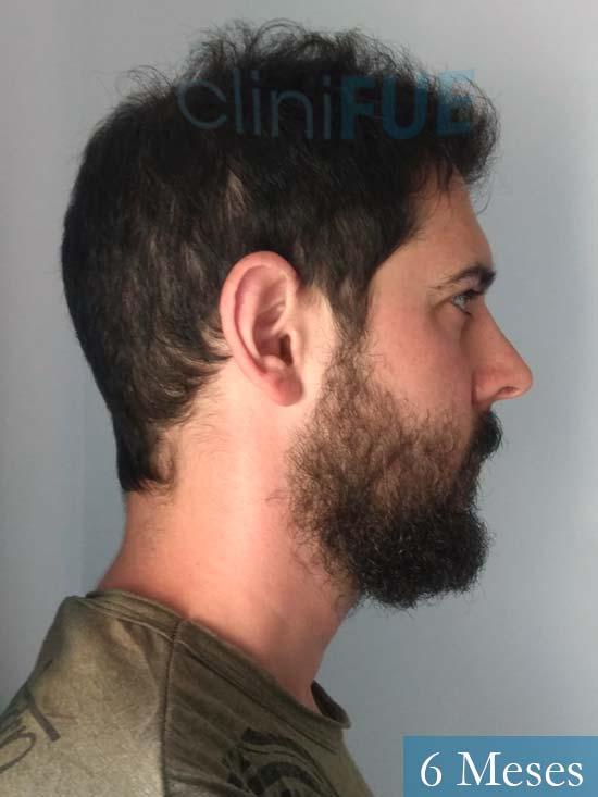 Jose Luis 32 cantabria injerto de pelo 6 meses 3