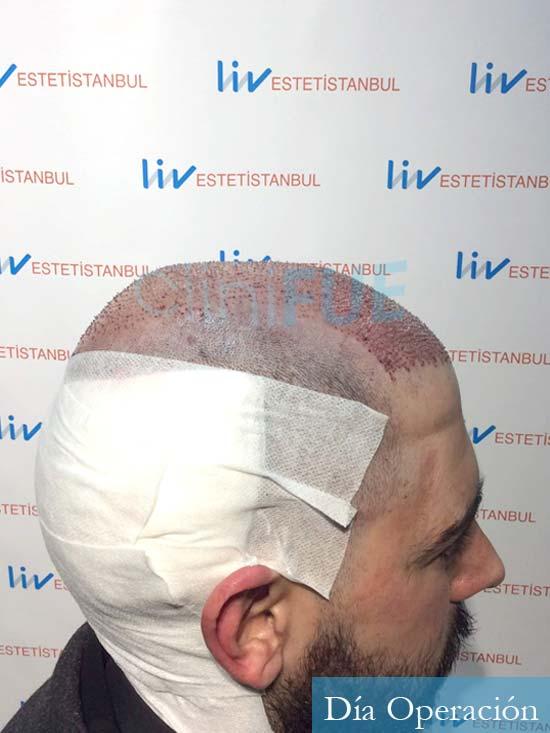 Jose Luis 32 cantabria injerto de pelo dia operacion 3