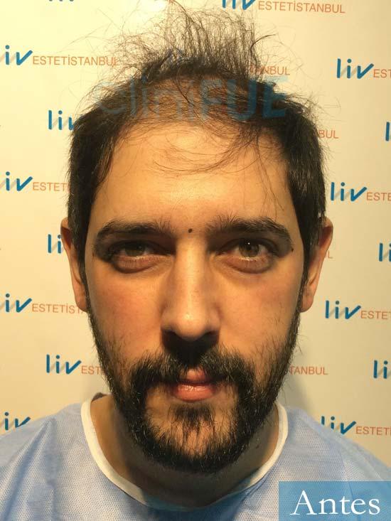 Jose Luis 32 Cantabria injerto de pelo dia operacion Antes