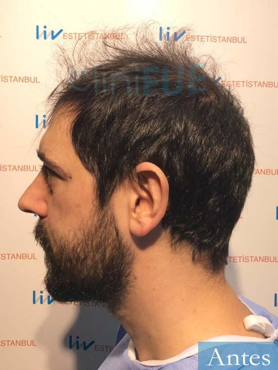 Jose Luis 32 Cantabria injerto de pelo dia operacion Antes 4
