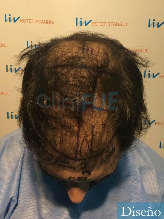 Fran 32 alicante injerto de pelo dia operacion diseno 2