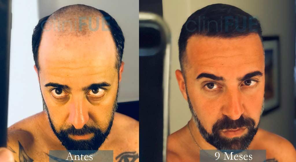 Trasplante capilar de Jose Manuel 36 Años de Cádiz con cliniFUE