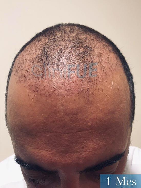 Jose-Manuel-36-Cadiz-trasplante-turquia-1 mes