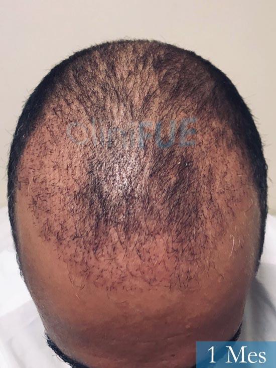 Jose-Manuel-36-Cadiz-trasplante-turquia-1 mes 2