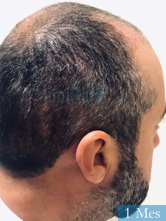 Jose-Manuel-36-Cadiz-trasplante-turquia-1 mes 3