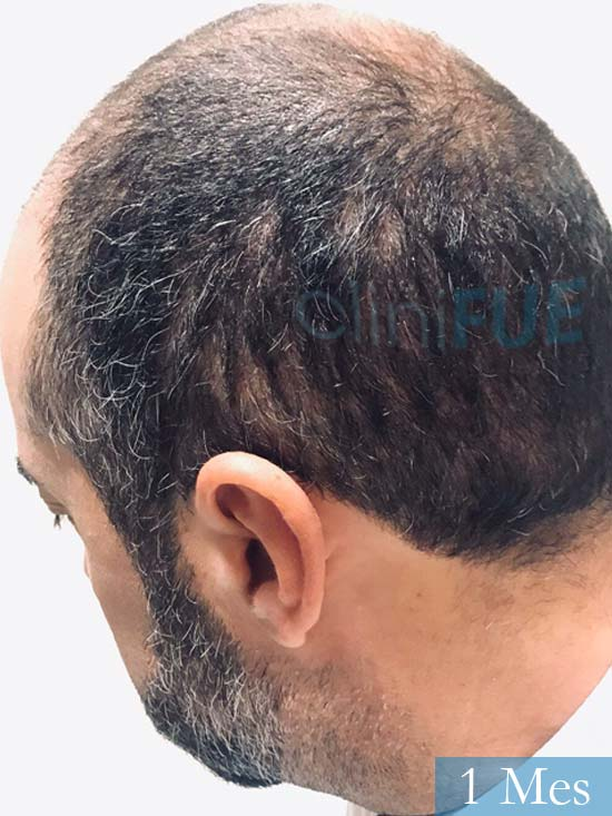 Jose-Manuel-36-Cadiz-trasplante-turquia-1 mes 4