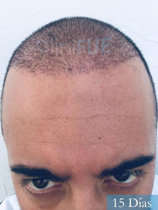 Jose-Manuel-36-Cadiz-trasplante-turquia-15 dias