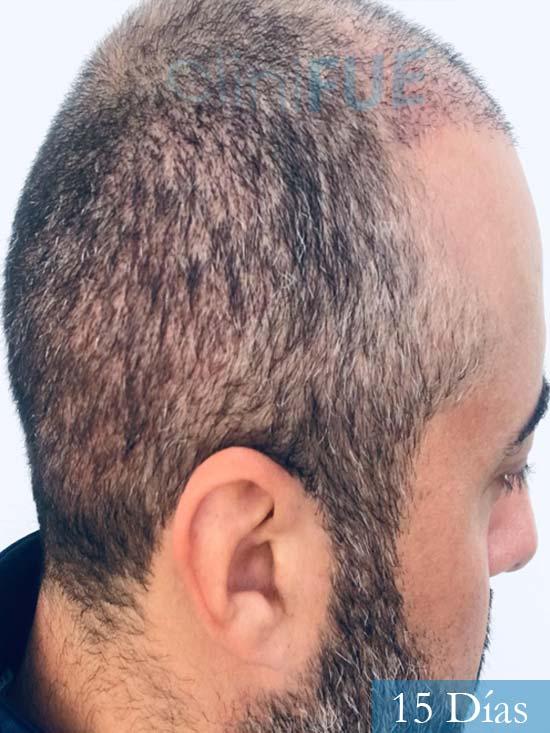 Jose-Manuel-36-Cadiz-trasplante-turquia-15 dias 3