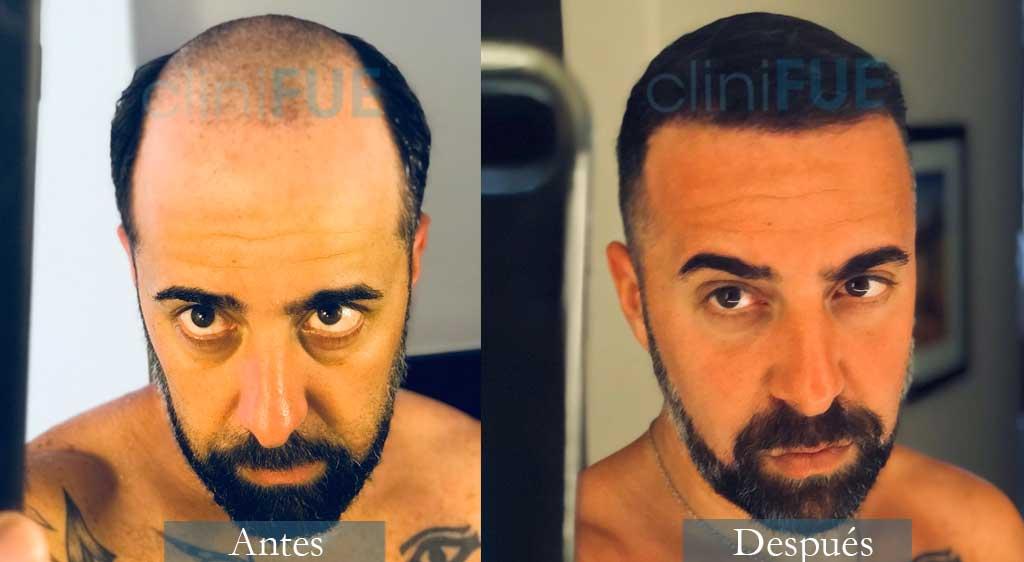 Jose Manuel 36 años Cadiz 4100 UF injerto capilar