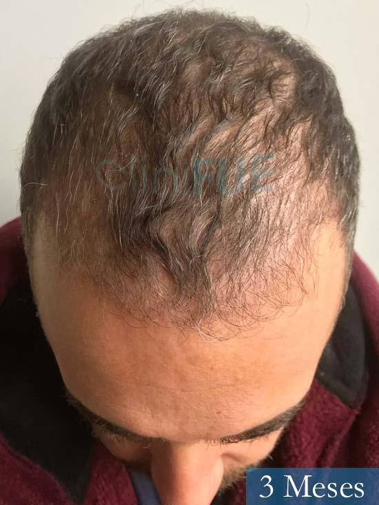 Jose Manuel 36 anos Cadiz injerto pelo turquia 3 meses 2