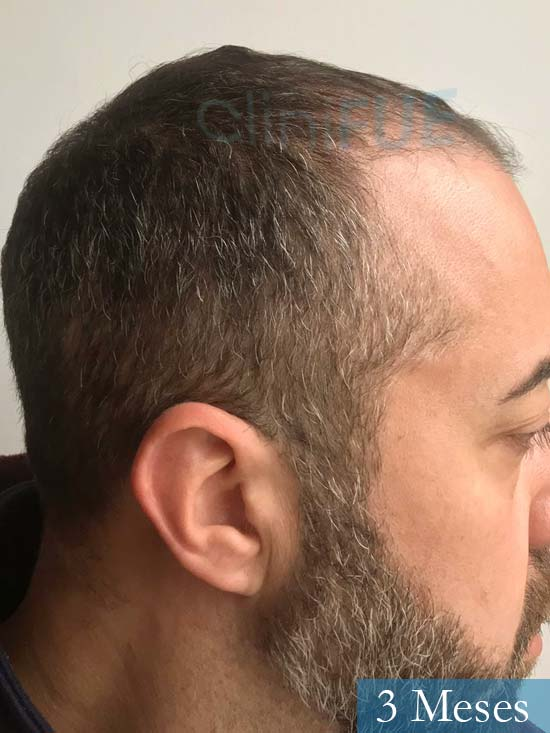 Jose Manuel 36 anos Cadiz injerto pelo turquia 3 meses 3