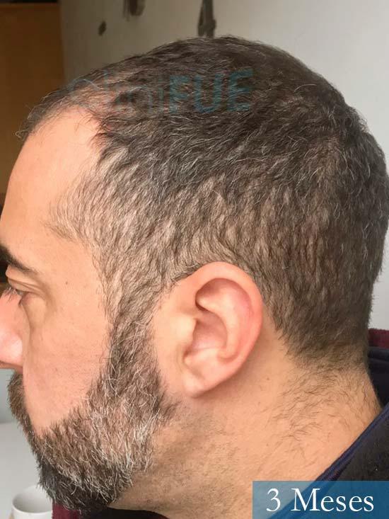 Jose Manuel 36 anos Cadiz injerto pelo turquia 3 meses 4