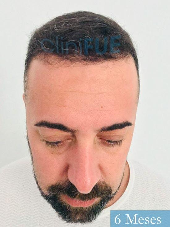 Jose Manuel 36 anos Cadiz injerto pelo turquia 6 meses