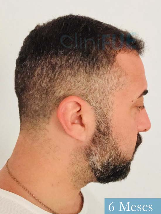 Jose Manuel 36 anos Cadiz injerto pelo turquia 6 meses 2