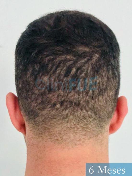 Jose Manuel 36 anos Cadiz injerto pelo turquia 6 meses 3