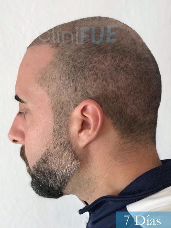 Jose-Manuel-36-Cadiz-trasplante-turquia-7 dias