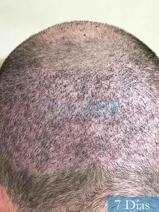 Jose-Manuel-36-Cadiz-trasplante-turquia-7 dias 4