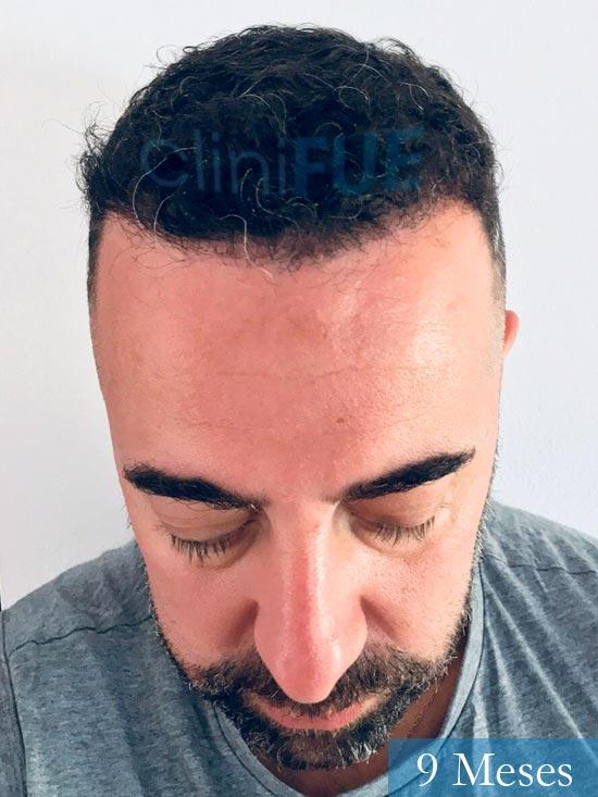 Jose Manuel 36 anos Cadiz injerto pelo turquia 9 meses