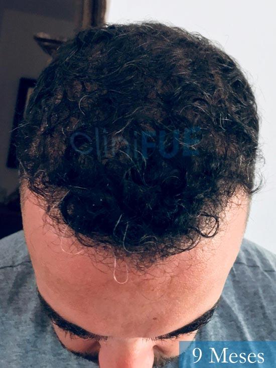 Jose Manuel 36 anos Cadiz injerto pelo turquia 9 meses 2