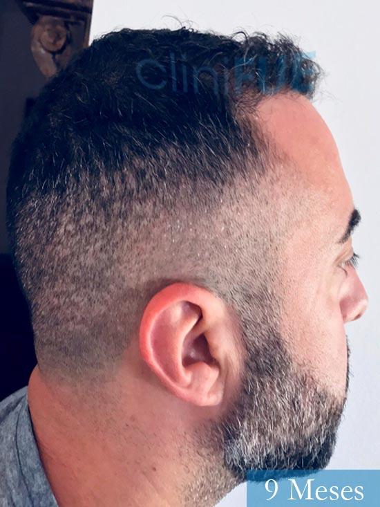 Jose Manuel 36 anos Cadiz injerto pelo turquia 9 meses 3
