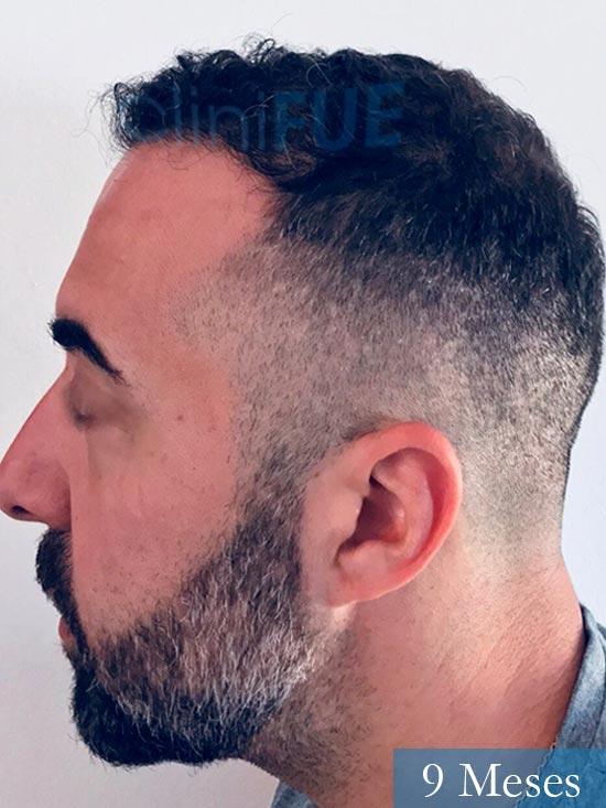 Jose Manuel 36 anos Cadiz injerto pelo turquia 9 meses 4