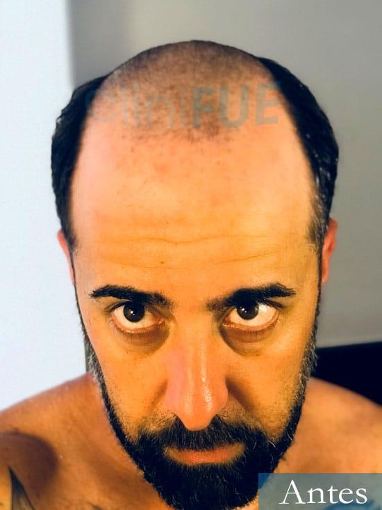 Jose-Manuel-36-Cadiz-trasplante-turquia-antes